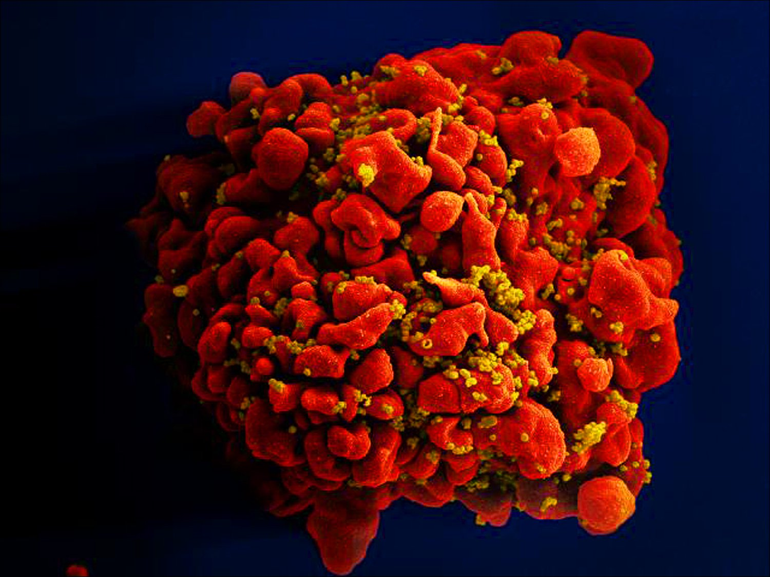 Image of an H9-T cell infected with HIV particles