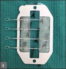 The Zip Surgical Skin Closure device